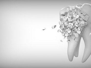 Vuoi studiare Odontoiatria a Malta? Scopri come partecipare al test d'ingresso